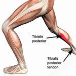 tibialias-posterior